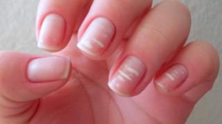 manchas blancas en las uñas leuconiquia
