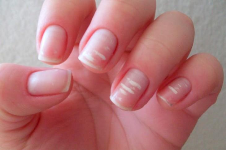puntos blancos en las uñas leuconiquia