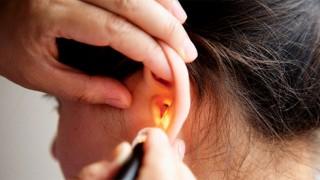 Eliminar la cera de los oídos es bueno o malo